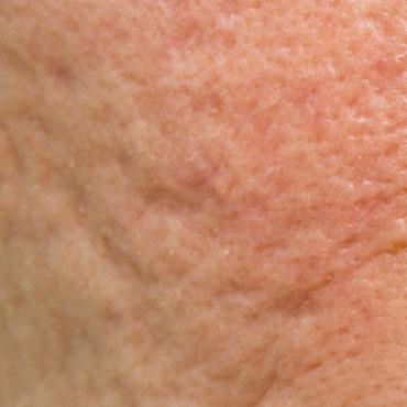 acne-marks