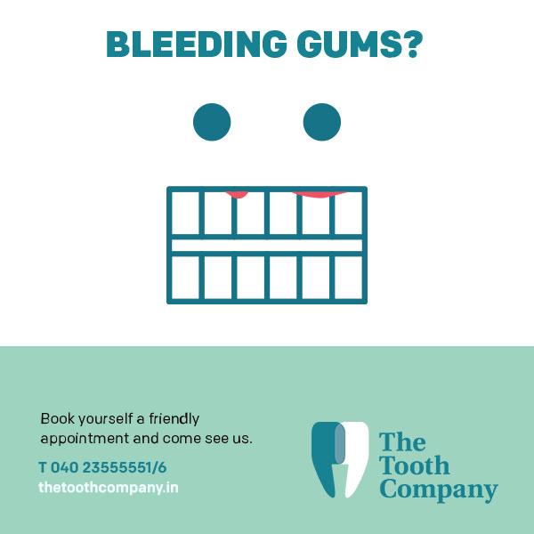 bleedinggums2